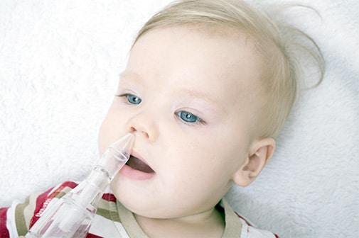 Einem Baby wird mit einem Nasensauggerät der Schleim, der sich durch einen Schnupfen gesammelt hat, sanft aus der Nase gesaugt.